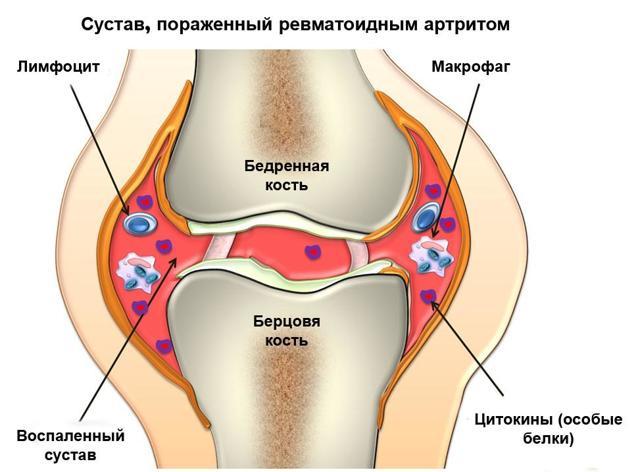Диета при ревматоидном артрите - что можно есть и что нельзя