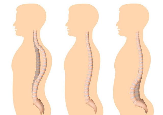 Кифоз грудного отдела позвоночника - что это такое и как лечить