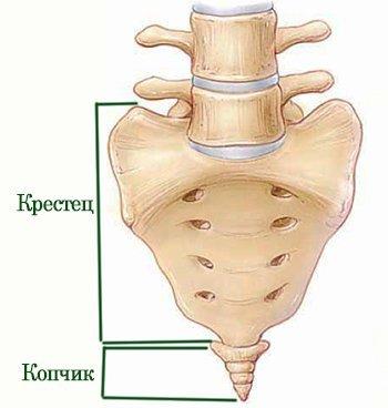 Ушиб копчика - симптомы, лечение и последствия