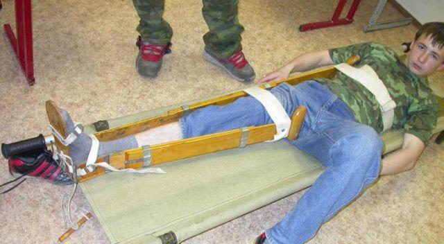 Вколоченный перелом шейки бедра - лечение и реабилитация