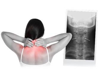 Дегенеративно-дистрофические изменения шейного отдела позвоночника