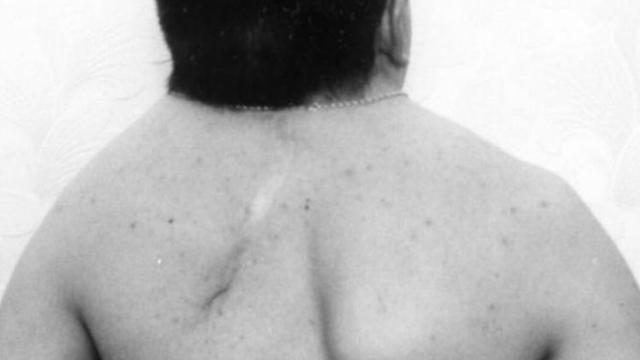 Синдром Клиппеля-Фейля - что это такое и как лечится