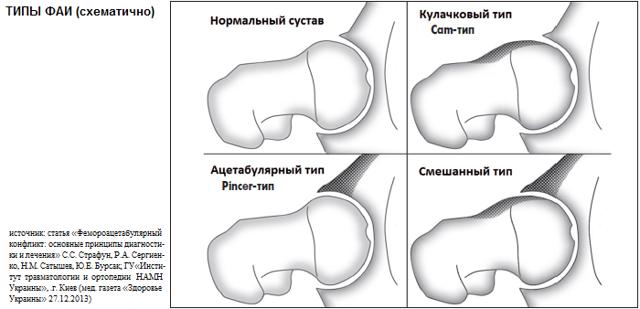 Импинджмент синдром тазобедренного сустава - что это такое