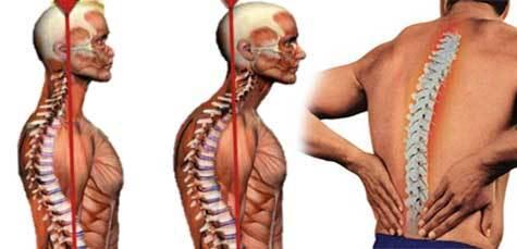 Болезнь Бехтерева - что это такое, симптомы, лечение и прогноз