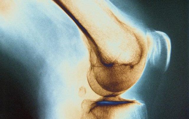 Туберкулез костей и суставов - симптомы, признаки и лечение