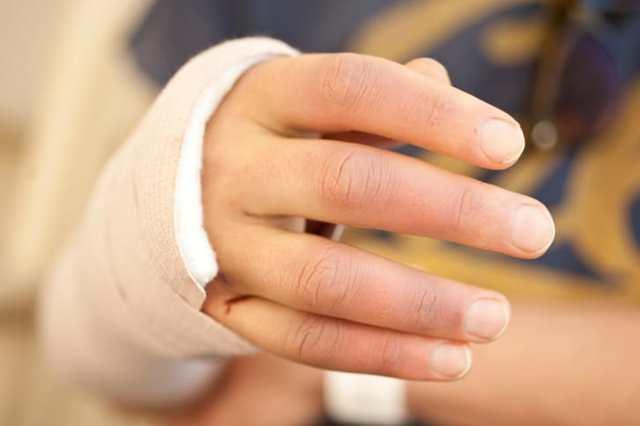 Реабилитация после перелома - методы восстановления
