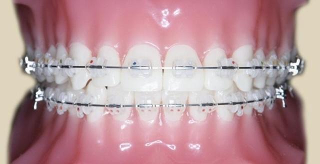 Шинирование челюсти при переломе - техника накладывания