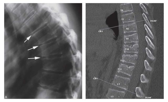 Клиновидная деформация позвонков грудного и поясничного отделов