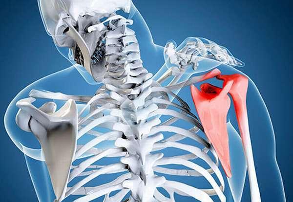 Перелом лопатки - симптомы, лечение и последствия
