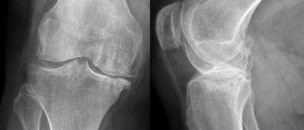 Остеонекроз латерального мыщелка бедренной кости - что это такое