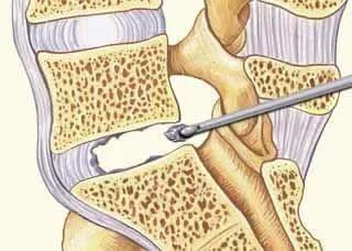 Микродискэктомия поясничного отдела позвоночника - реабилитация