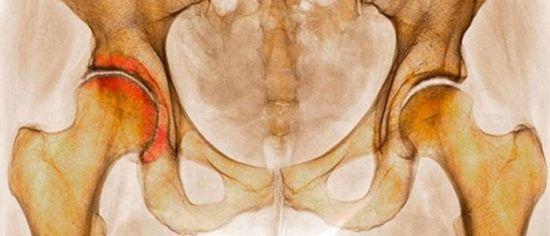 Коксартроз тазобедренного сустава 1 степени - лечение