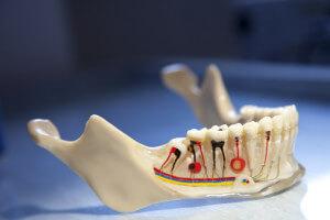 Перелом челюсти - симптомы, лечение и сроки заживления