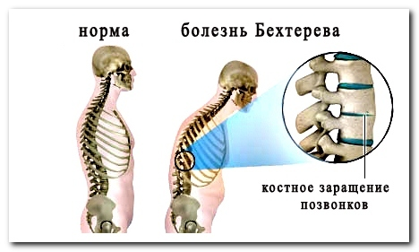 Боль в спине лежа на спине - почему такое может быть?