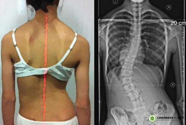 Сколиоз поясничного отдела позвоночника 1 и 2 степени - лечение