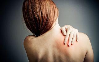 Постгерпетическая невралгия - что это такое и как лечится