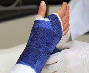 Перелом ладьевидной кости кисти - особенности и сроки лечения