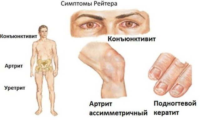 Синдром Рейтера - симптомы у мужчин и женщин, лечение