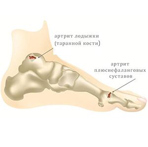 Болят суставы ног - причины и лечение. Что делать с проблемой?