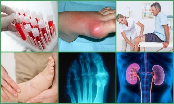Подагра - признаки и лечение у женщин. Описание заболевания