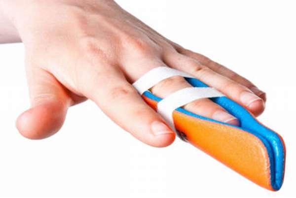 Перелом пальца на руке - признаки, симптомы и лечение