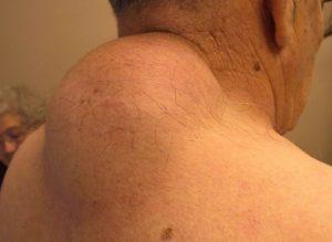 Гемангиолипома позвонка - что это такое и чем она опасна, лечение