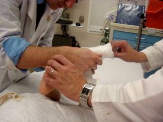 Артрогрипоз - что это такое и как эффективно лечить