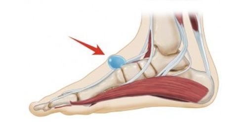 Гигрома стопы - что это такое, симптомы и лечение