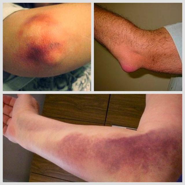 Гнойный бурсит локтевого и коленного сустава - симптомы и лечение