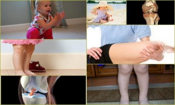 Дисплазия коленного сустава - что это такое и как лечится