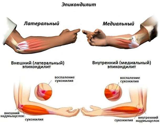 Болят суставы рук - что делать? Причины и лечение