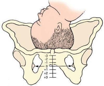 Болят кости таза при беременности - причины, опасность и лечение
