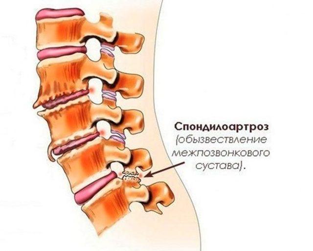 Спондилоартроз шейного отдела позвоночника - что это такое