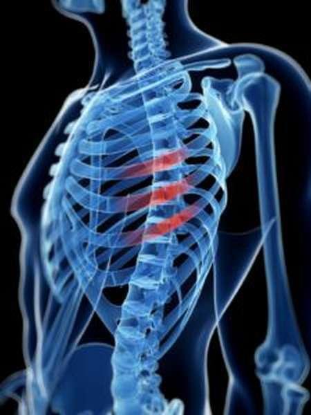 Как определить перелом ребра или ушиб - симптомы и лечение