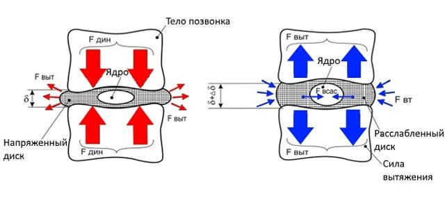 Вытяжка позвоночника при грыже позвоночника - описание процедуры
