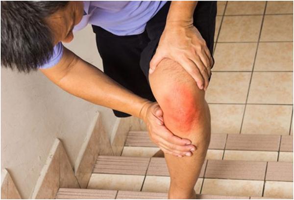 Боль в колене при ходьбе по лестнице - причины и как лечить?