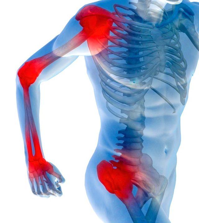 Таблетки от боли в суставах - список самых лучших
