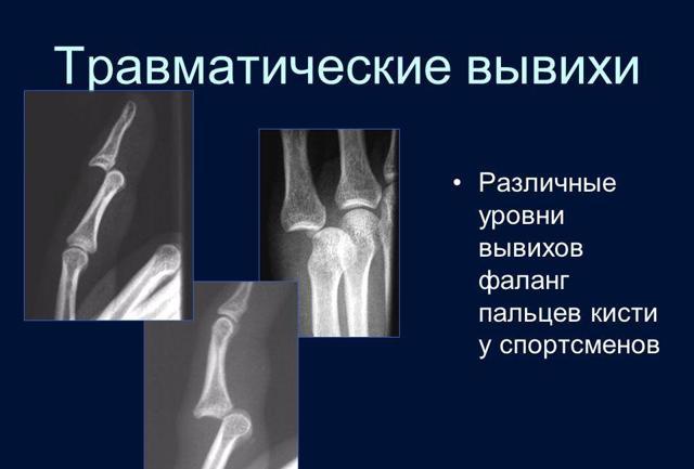 Вывих - это что такое, какие симптомы и признаки, как лечить