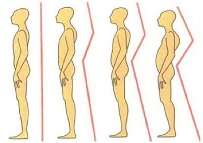 Сколиоз 3 степени - лечение у врача и в домашних условиях