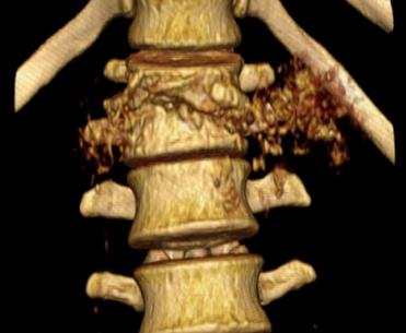 Туберкулезный спондилит - рентгенологические признаки и лечение