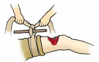 Первая помощь при переломах - последовательность действий