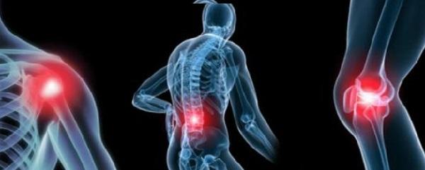 Артралгия - что это такое? Симптомы и лечение заболевания