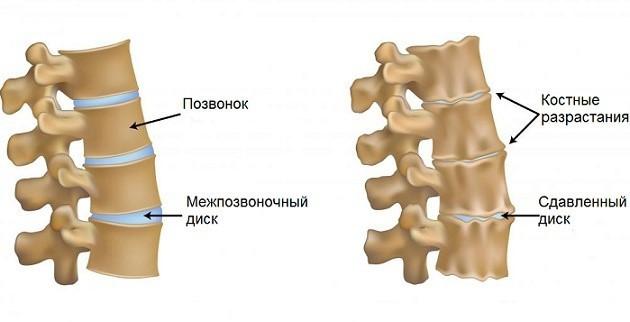 Унковертебральный артроз шейного отдела позвоночника - что это
