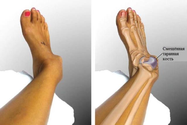 Перелом ноги - признаки, лечение, сколько ходить в гипсе