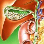 Боль под правой лопаткой сзади со спины - причины и лечение