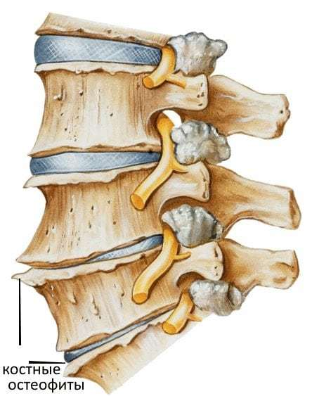 Лечение остеохондроза, симптомы и причины возникновения