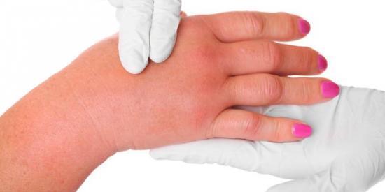 Болит сустав большого пальца на руке - причины и лечение
