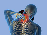 Вертебро-базилярная недостаточность на фоне шейного остеохондроза