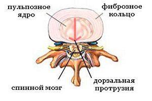 Протрузия дисков шейного отдела позвоночника - что это такое