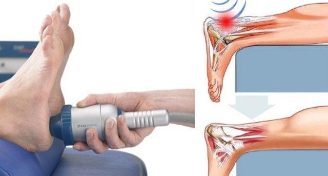 Ахиллобурсит - лечение, симптомы, диагностика и причины
